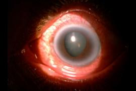 Retina Glaucoma patient